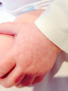 Cold & mottled hands